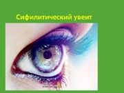 Сифилитический увеит  Этиология: Спирохет Treponema pallidum (бледная