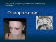 Отморожения. АОУ СПО РК «Петрозаводский базовый медицинский колледж»