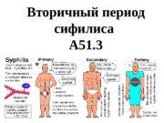 Вторичный период сифилиса А 51. 3