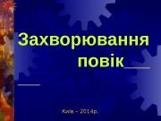 Презентация Zakhvoryuvannya povik